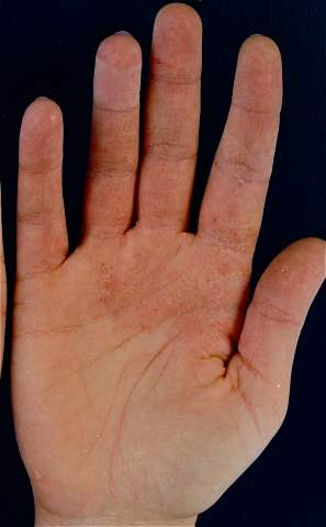 allergisk mot plåster